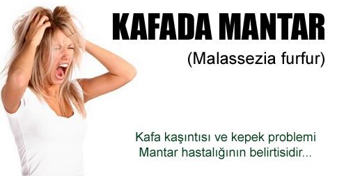 Malassezia furfur