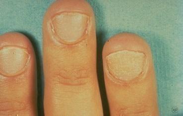 Saçkıran tırnaklarda kalite kaybı